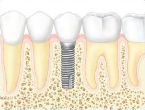 corona implantes